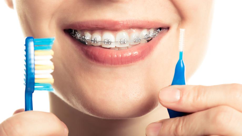 Planujesz Zalozyc Aparat Ortodontyczny To Moze Ci Sie Przydac Allegro Pl